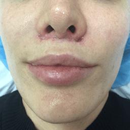 after lip lift