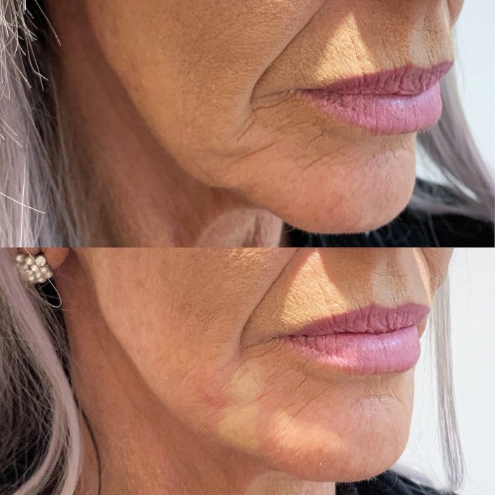 Thread lift (face & neck lift)