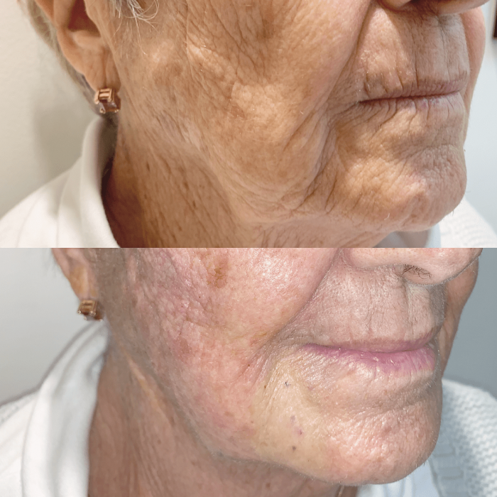 Thread Lift Before and Afters