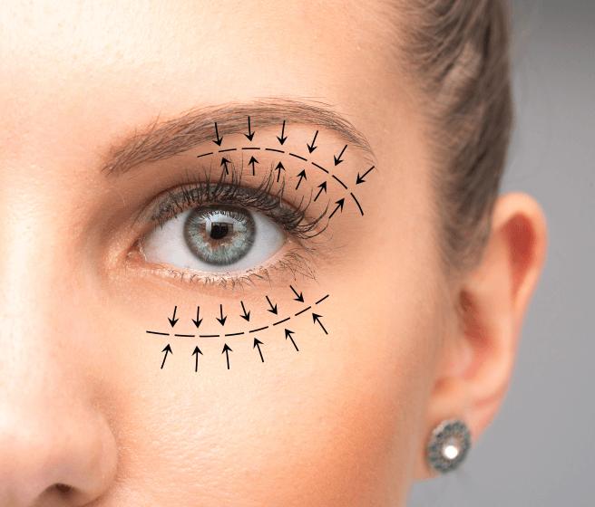 eyelid surgery sydney