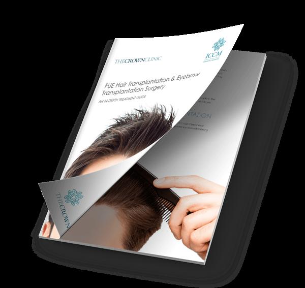 hair-transplants-guide