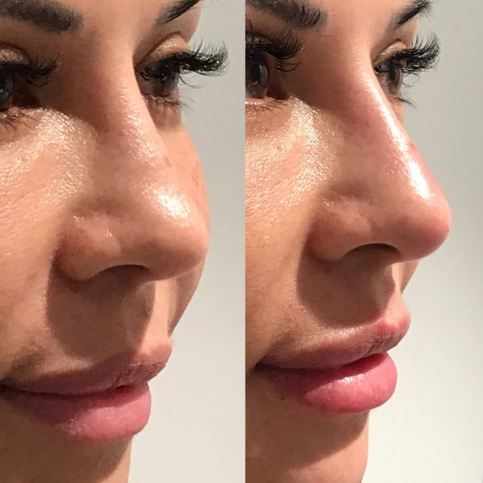Liquid Rhinoplasty Before and Afters